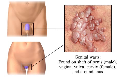 Diagram of genital warts on both male and female
