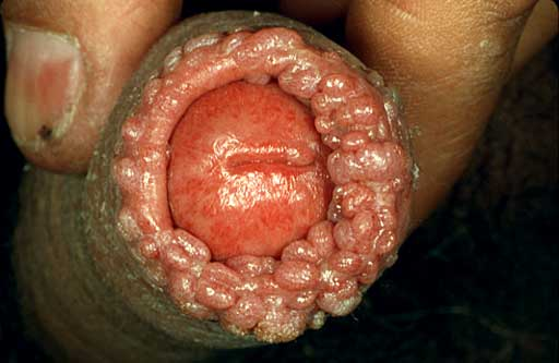 A REALLY bad case of genital warts around the head of the penis