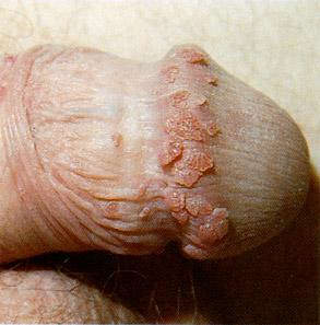 A more dry case of warts