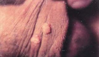 Closeup of a couple of warts on the foreskin