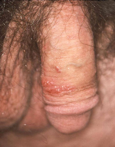 Genital warts that look like herpes