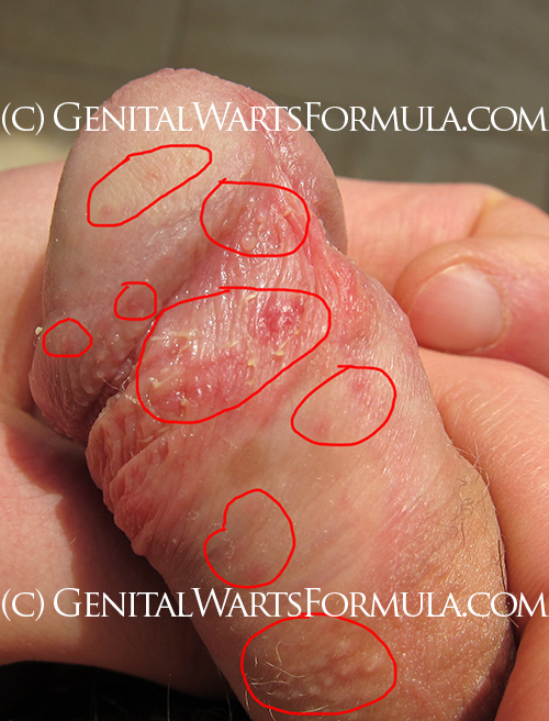 Early stages of male yeast infection